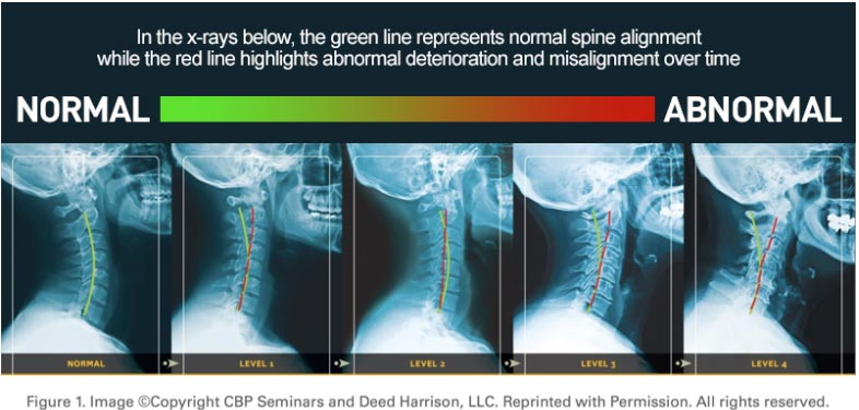 Chiropractic Minneapolis MN Neck Curve
